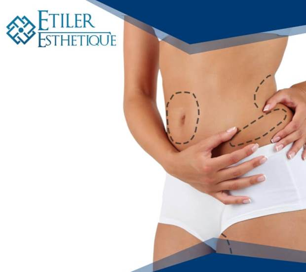 liposuction-yag-aldirma-1