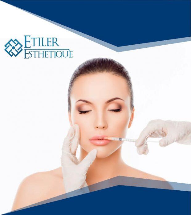 dudak-estetigi-ameliyati-2
